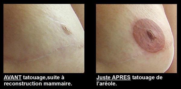 areoles-seins-danae-1.jpg