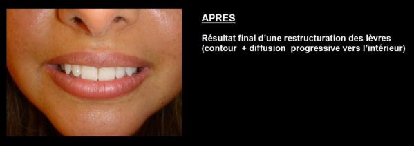 maquillage-permanent-lille-10.jpg